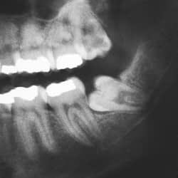 What are impacted wisdom teeth - Pat Crawford DDS