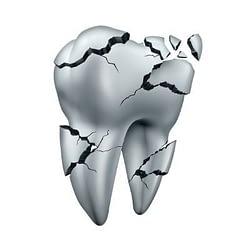 Dental-Emergency-Cracked-Tooth-Kenosha-Dentist