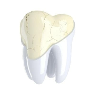 Dental Crown - crazed tooth - Kenosha Dentist