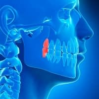 Wisdom teeth come later in life - Kenosha Dentist