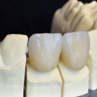 Zirconium Crown - Kenosha Dentist