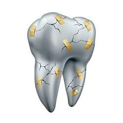 Degradation of dental restorations - DIY teeth whitening - Kenosha Dentist