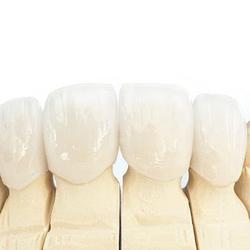 Easy dental crowns - Crown dentist in Kenosha
