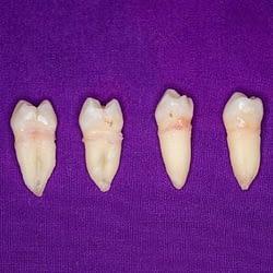 Wisdom teeth removal - Kenosha Dentist