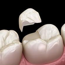 Healthy-tooth-structure-dental-onlay - Kenosha Dentist